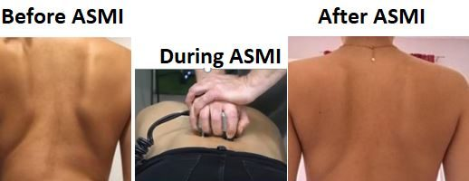 How to Reduce Scoliosis Curves with the non-Surgical ASMI Treatment ?