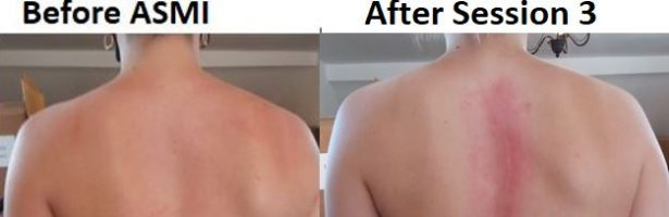 The ASMI 'Before' & 'After' #Scoliosis Photo Gallery